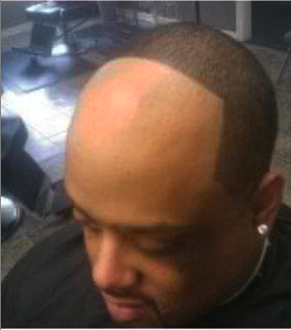 Hairline Start In The Middle Of His Head IMNOTATOY